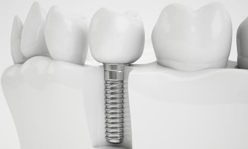 Implantologie / Zahnimplantate
